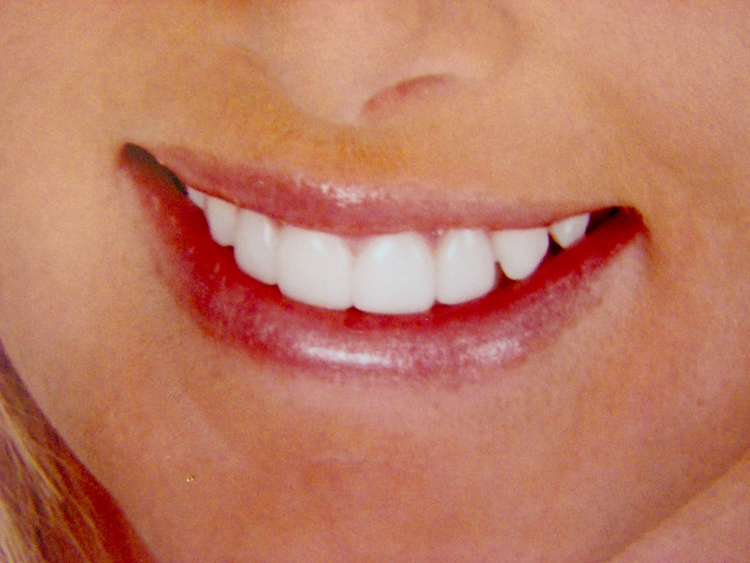 Lumineers_Veneers_Cosmetic_Dentistry.JPG